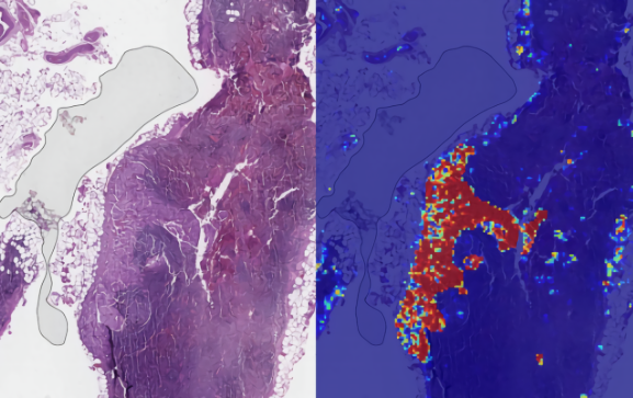 Google AI LYNA Breast Cancer